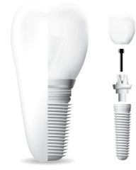 A 3D image of how your dental implant from our dentist works.