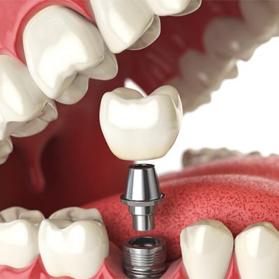 A diagram depicting dental implants and their components.